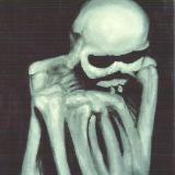 The Analyst a.k.a. Mr. Bones